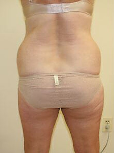 Female Liposuction Gallery - Patient 9605561 - Image 1