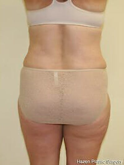Female Liposuction Gallery - Patient 9605561 - Image 2
