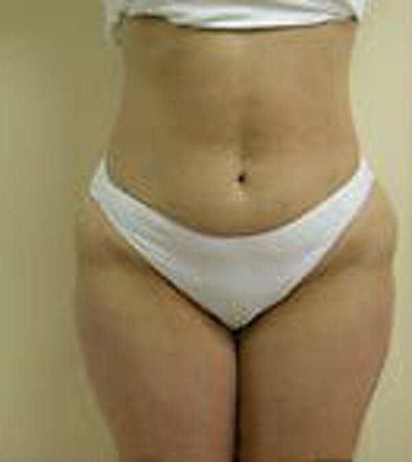 Female Liposuction Gallery - Patient 9605571 - Image 1