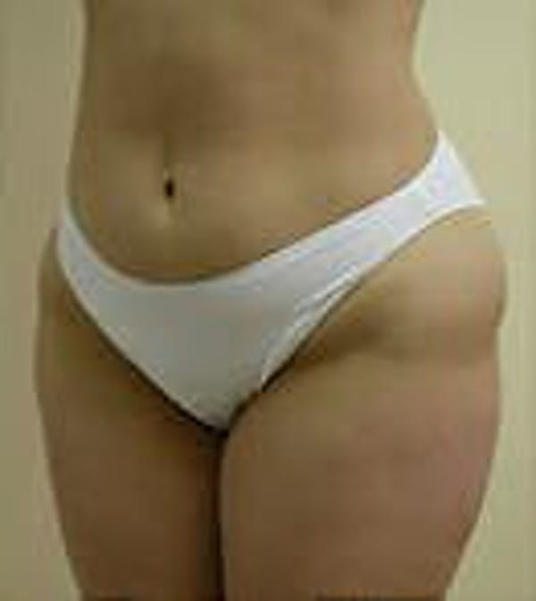 Female Liposuction Gallery - Patient 9605571 - Image 3