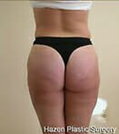 Female Liposuction Gallery - Patient 9605571 - Image 6