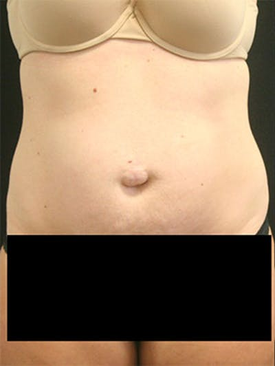 Tummy Tuck Gallery - Patient 9605573 - Image 1
