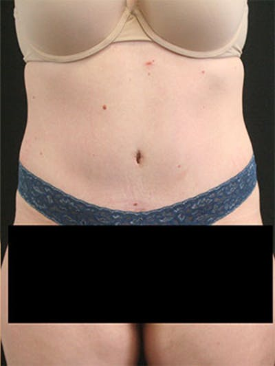 Tummy Tuck Gallery - Patient 9605573 - Image 2