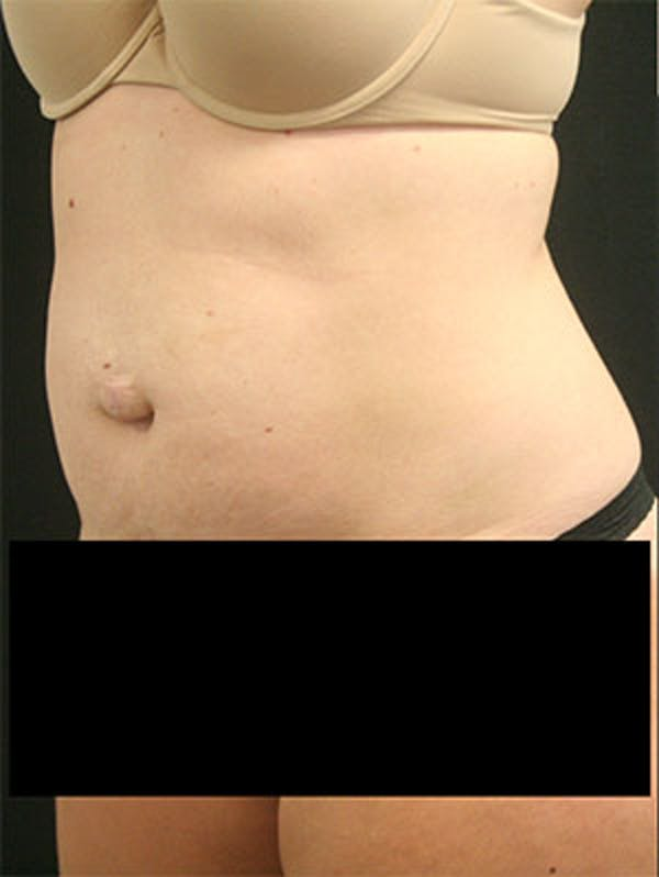 Tummy Tuck Gallery - Patient 9605573 - Image 3