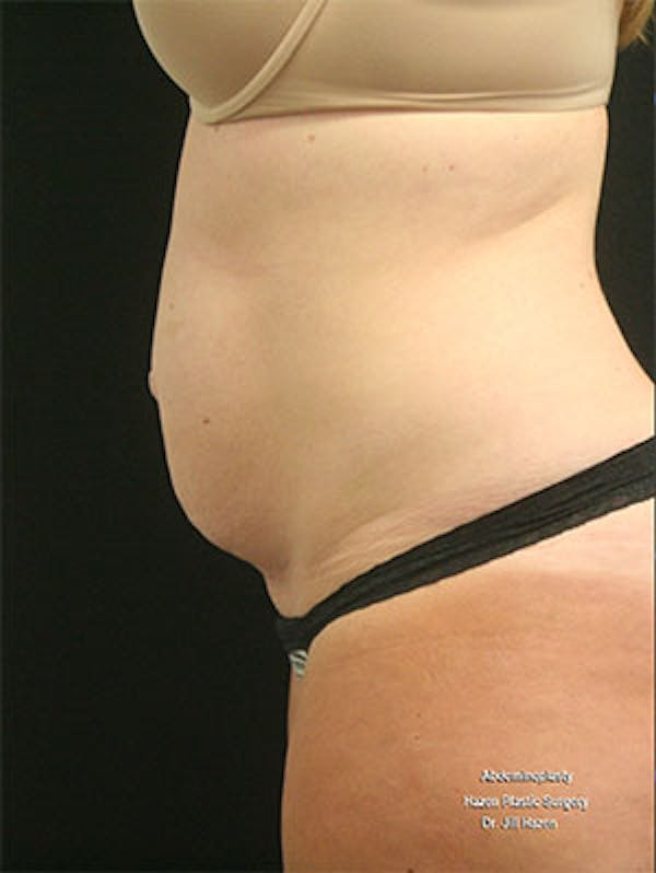 Tummy Tuck Gallery - Patient 9605573 - Image 5