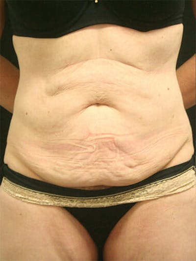 Tummy Tuck Gallery - Patient 9605576 - Image 1