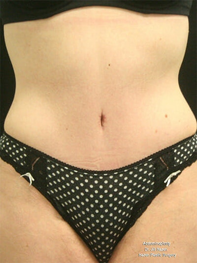 Tummy Tuck Gallery - Patient 9605576 - Image 2