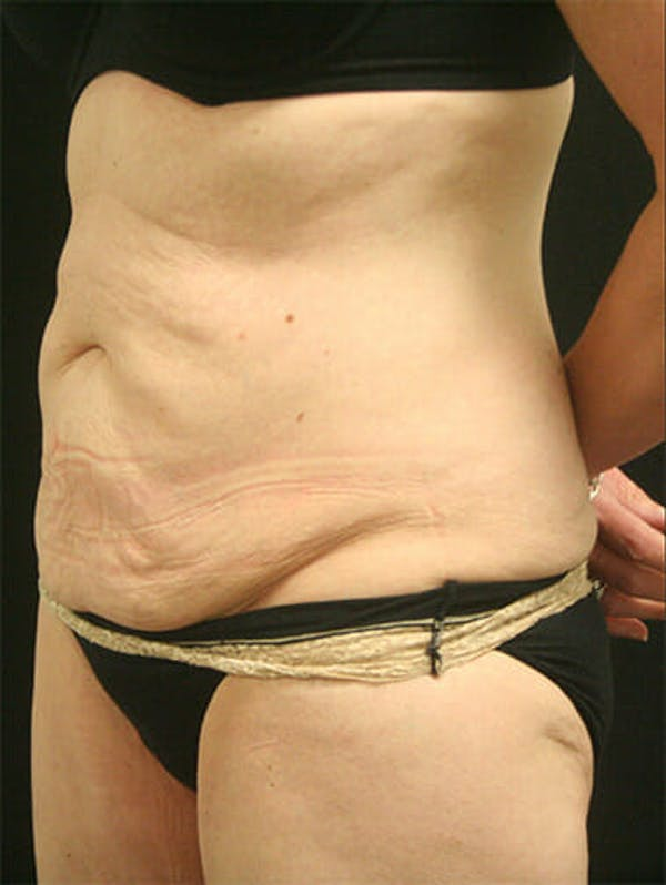 Tummy Tuck Gallery - Patient 9605576 - Image 3