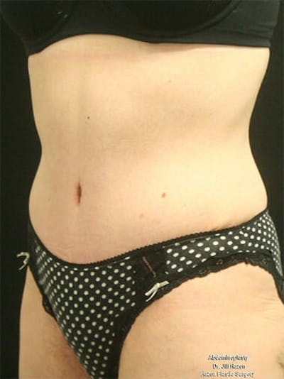 Tummy Tuck Gallery - Patient 9605576 - Image 4