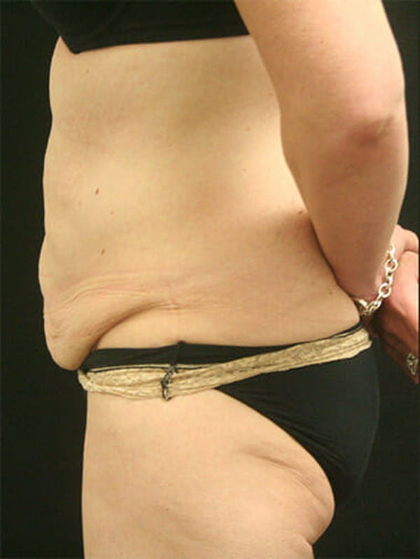Tummy Tuck Gallery - Patient 9605576 - Image 5