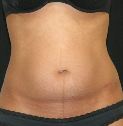 Tummy Tuck Gallery - Patient 9605578 - Image 1
