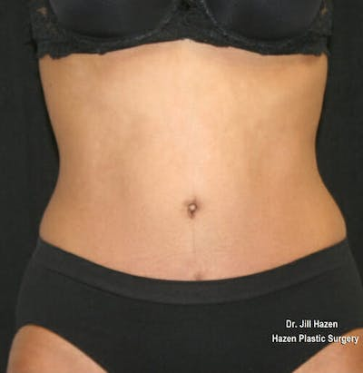 Tummy Tuck Gallery - Patient 9605578 - Image 2
