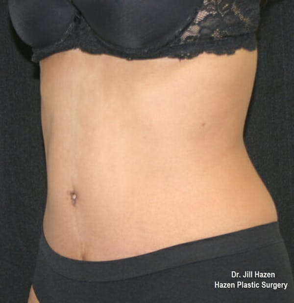 Tummy Tuck Gallery - Patient 9605578 - Image 4