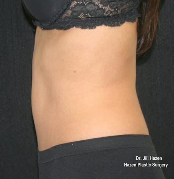 Tummy Tuck Gallery - Patient 9605578 - Image 6