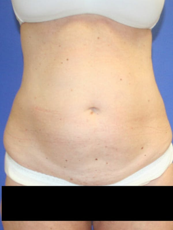 Tummy Tuck Gallery - Patient 9605579 - Image 1