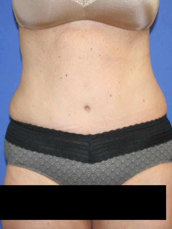 Tummy Tuck Gallery - Patient 9605579 - Image 2