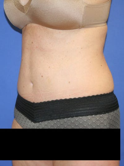Tummy Tuck Gallery - Patient 9605579 - Image 4