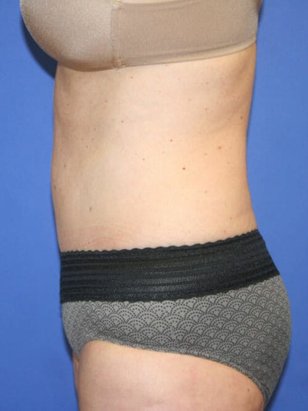 Tummy Tuck Gallery - Patient 9605579 - Image 6