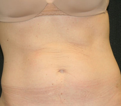 Tummy Tuck Gallery - Patient 9605580 - Image 1