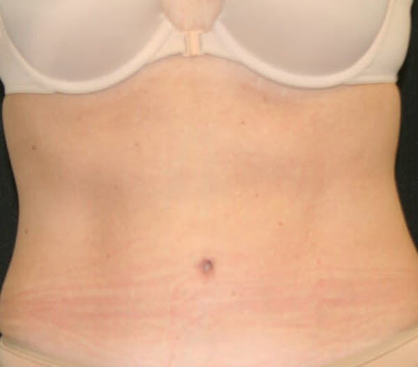 Tummy Tuck Gallery - Patient 9605580 - Image 2