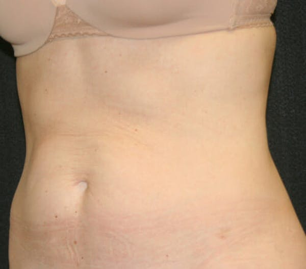 Tummy Tuck Gallery - Patient 9605580 - Image 3