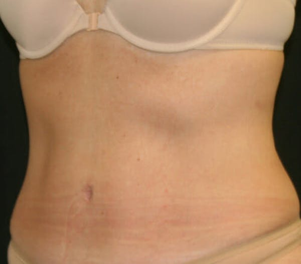 Tummy Tuck Gallery - Patient 9605580 - Image 4