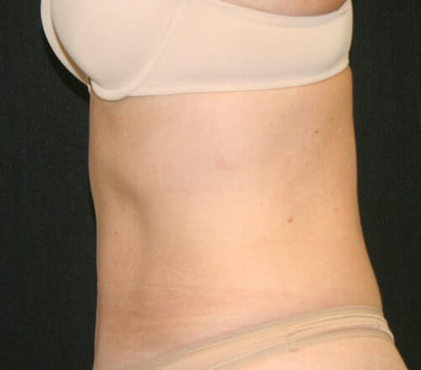 Tummy Tuck Gallery - Patient 9605580 - Image 6