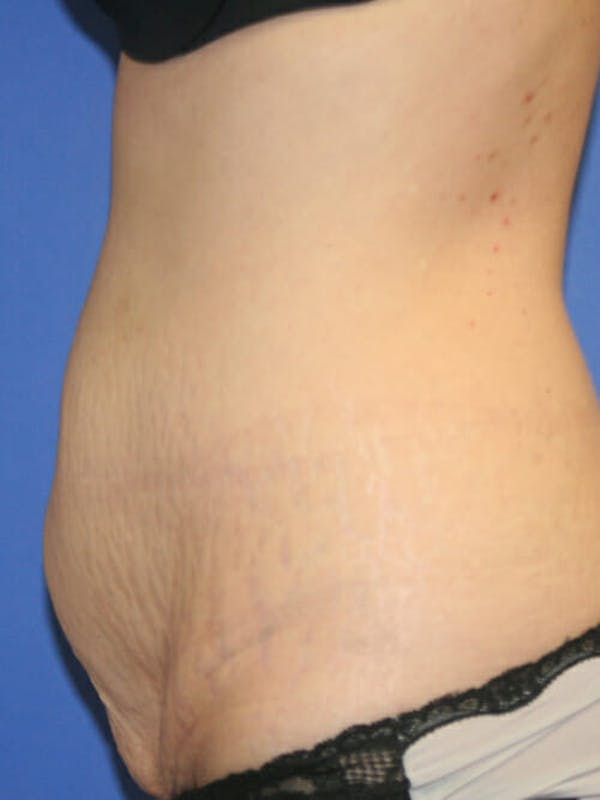 Tummy Tuck Gallery - Patient 9605581 - Image 5