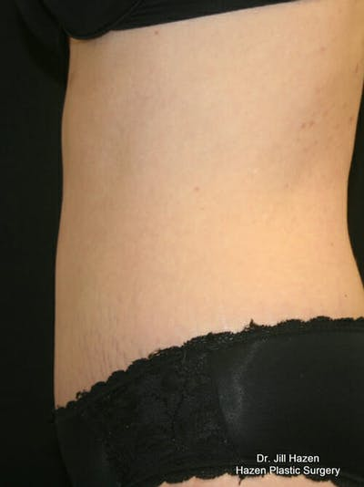 Tummy Tuck Gallery - Patient 9605581 - Image 6