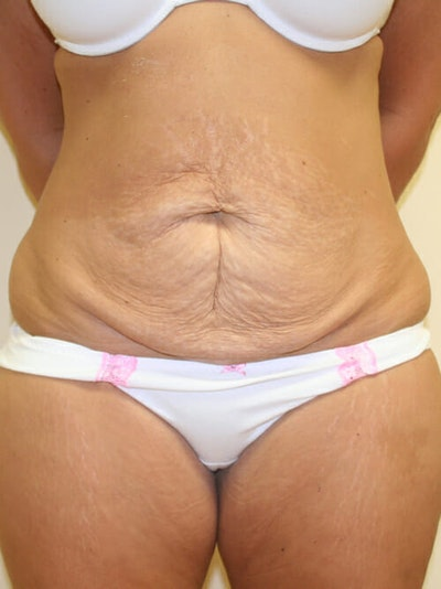 Tummy Tuck Gallery - Patient 9605583 - Image 1