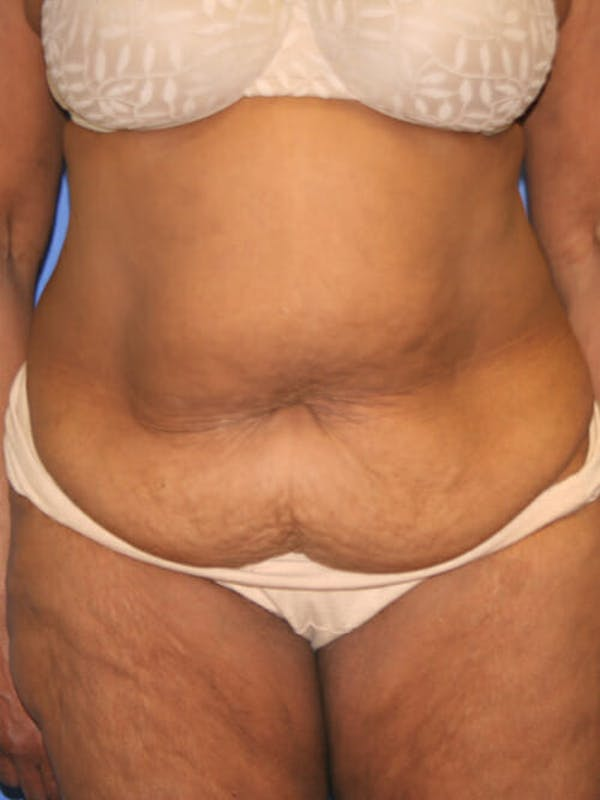 Tummy Tuck Gallery - Patient 9605584 - Image 1