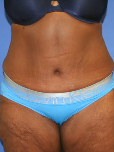 Tummy Tuck Gallery - Patient 9605584 - Image 2