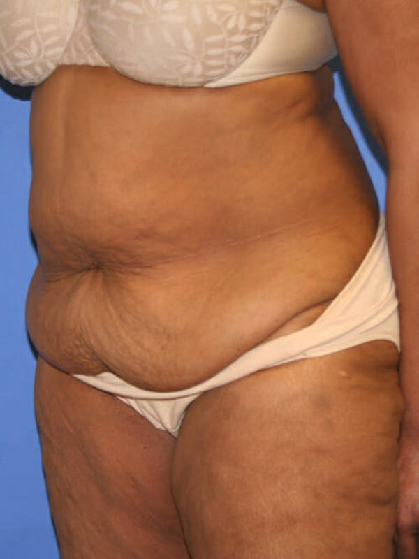 Tummy Tuck Gallery - Patient 9605584 - Image 3