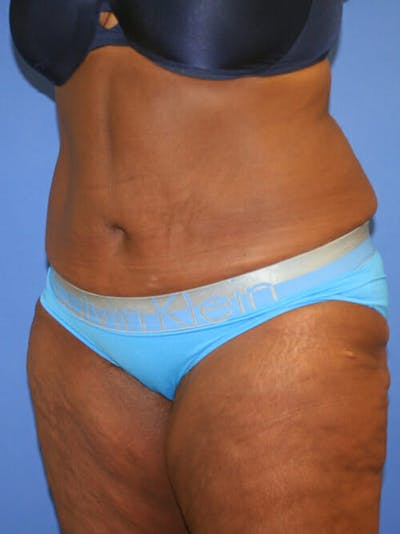 Tummy Tuck Gallery - Patient 9605584 - Image 4