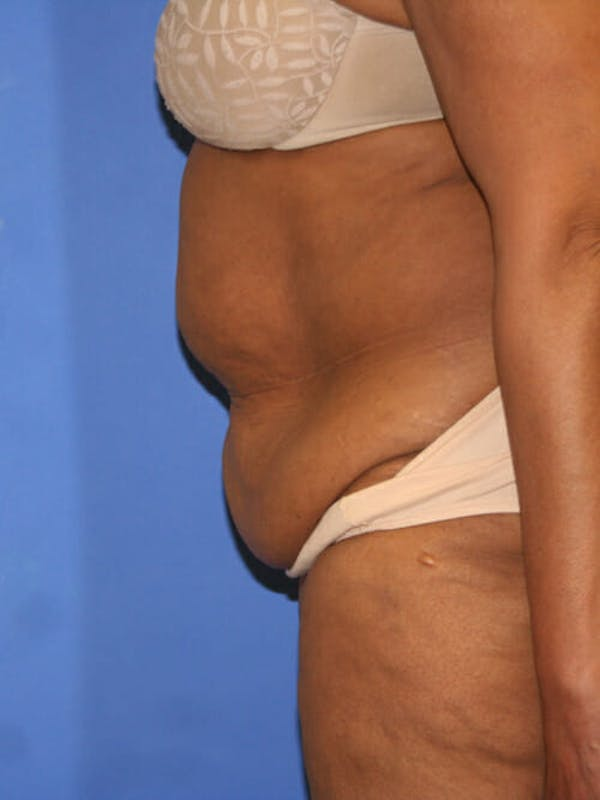 Tummy Tuck Gallery - Patient 9605584 - Image 5