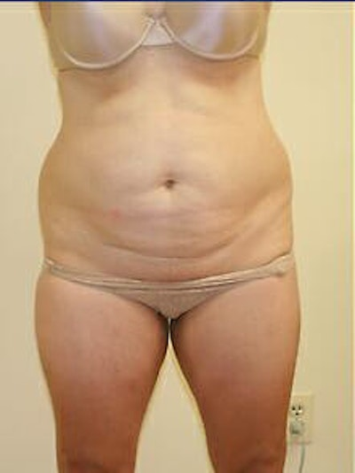 Tummy Tuck Gallery - Patient 9605586 - Image 1