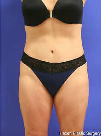 Tummy Tuck Gallery - Patient 9605586 - Image 2