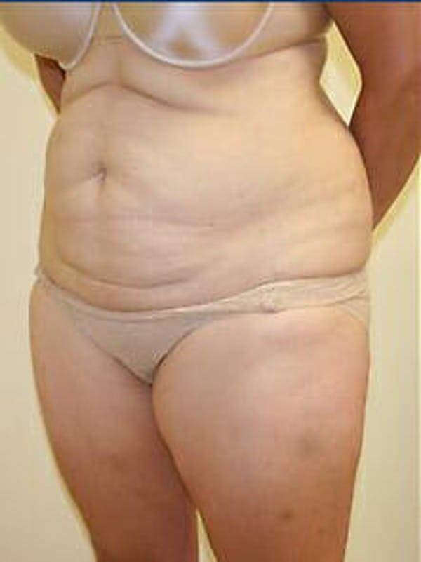 Tummy Tuck Gallery - Patient 9605586 - Image 3