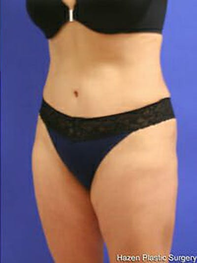 Tummy Tuck Gallery - Patient 9605586 - Image 4