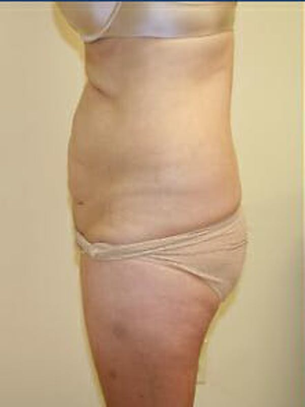 Tummy Tuck Gallery - Patient 9605586 - Image 5