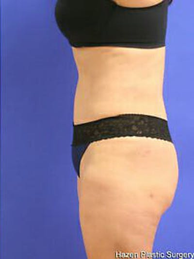 Tummy Tuck Gallery - Patient 9605586 - Image 6