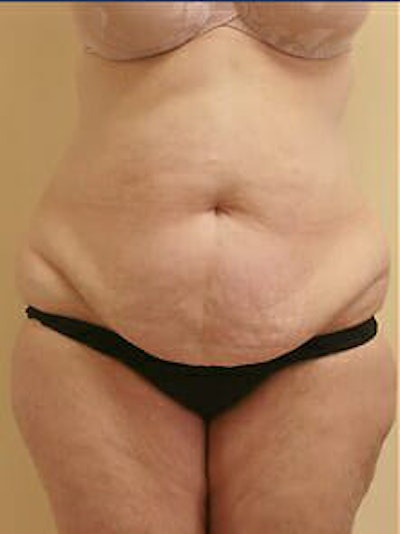 Tummy Tuck Gallery - Patient 9605589 - Image 1