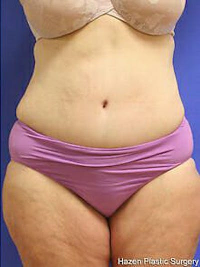 Tummy Tuck Gallery - Patient 9605589 - Image 2