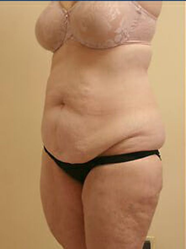 Tummy Tuck Gallery - Patient 9605589 - Image 3