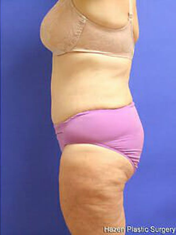 Tummy Tuck Gallery - Patient 9605589 - Image 6