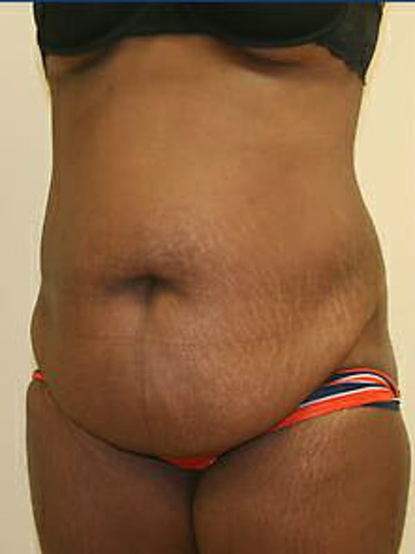 Tummy Tuck Gallery - Patient 9605594 - Image 3