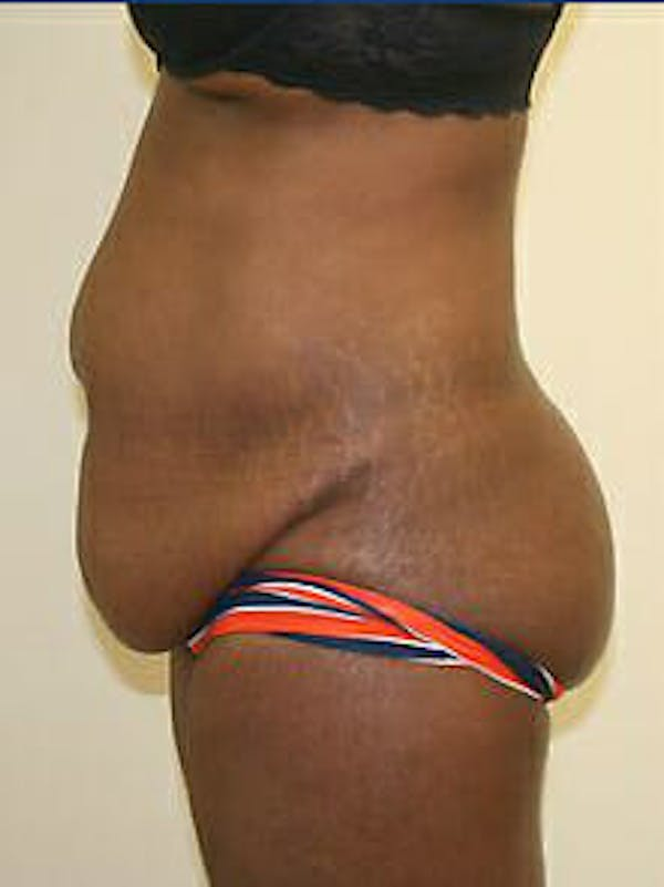 Tummy Tuck Gallery - Patient 9605594 - Image 5