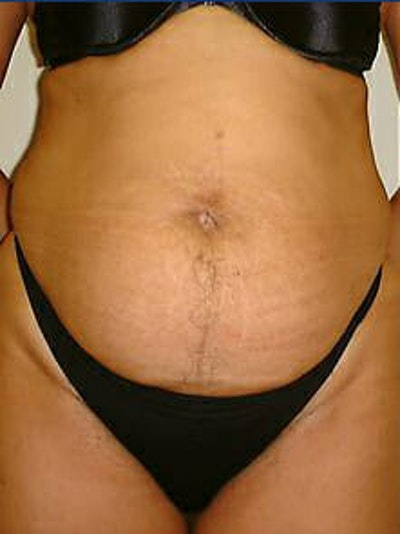 Tummy Tuck Gallery - Patient 9605602 - Image 1