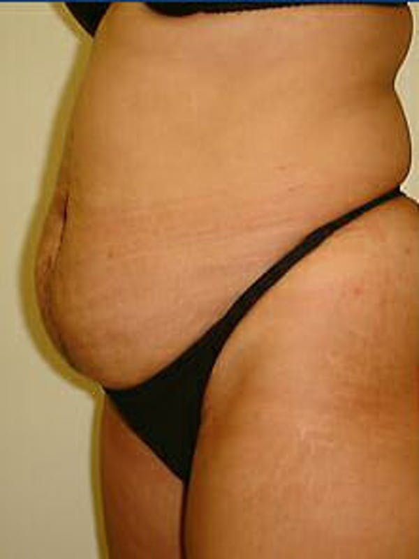 Tummy Tuck Gallery - Patient 9605602 - Image 3