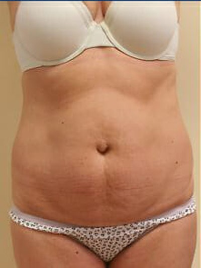 Tummy Tuck Gallery - Patient 9605603 - Image 1
